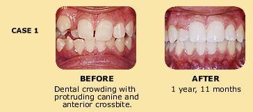 Case 1 before and after dental crowding photo