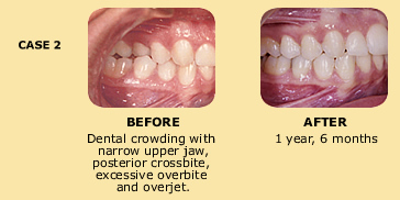 Case 2 before and after dental crowding photo