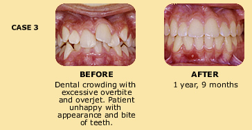 Case 3 before and after dental crowding photo
