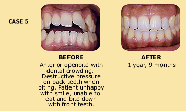 Case 5 before and after dental crowding photo